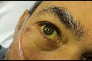 желтые глаза после запоя